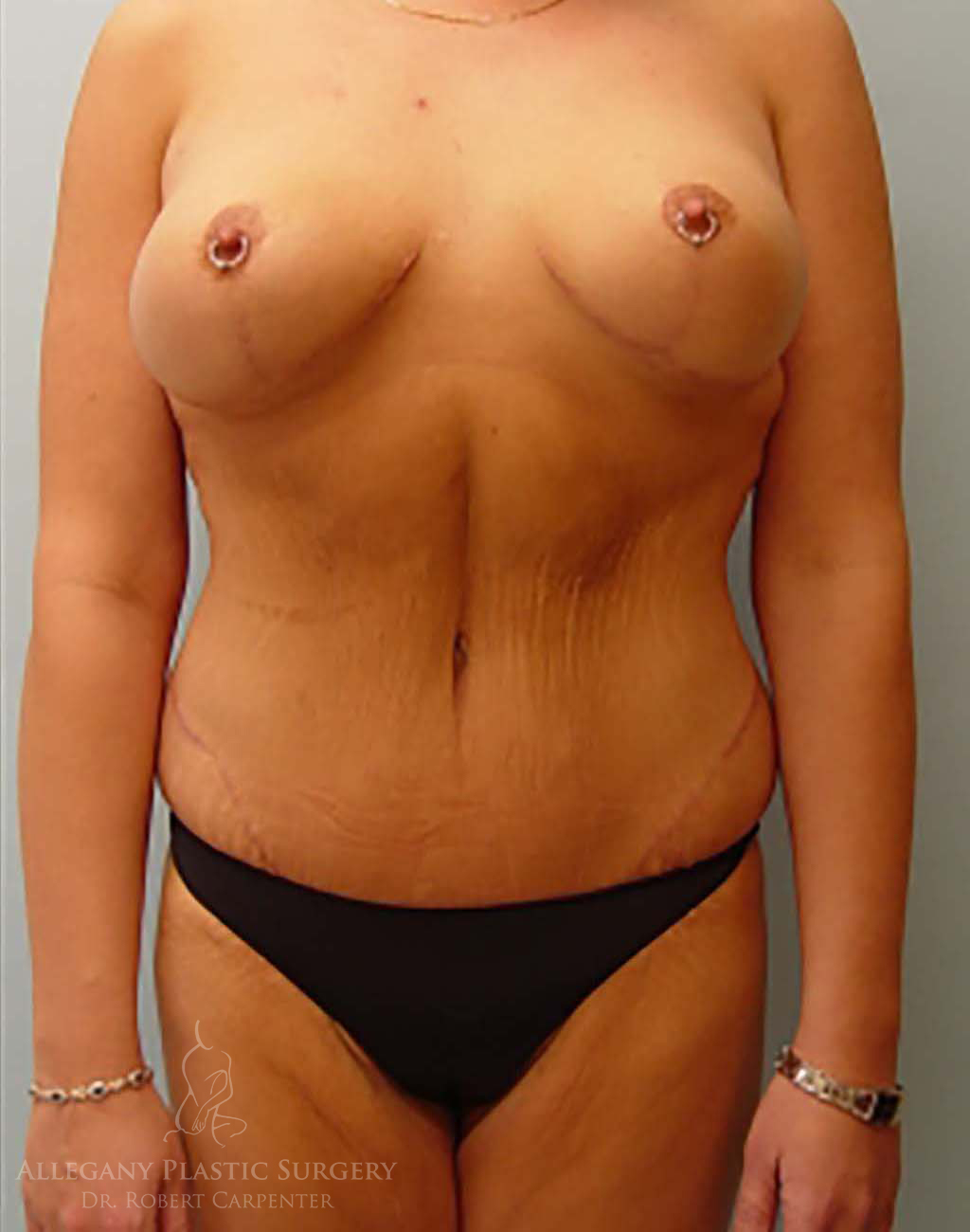 Massive Weight Loss Patient 1