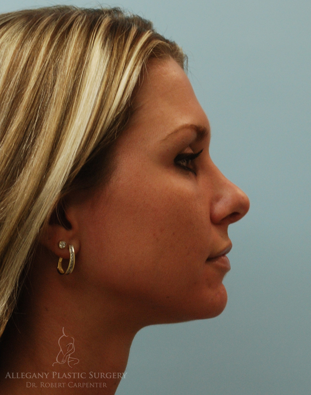 Rhinoplasty/Facial Implants Patient 1